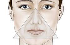 Descarte de círculos abaixo de olhos