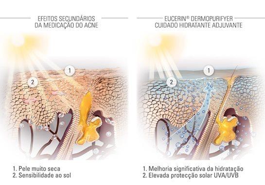 Eucerin Pele Propensa 224 Acne Tratamentos M 233 Dicos Para